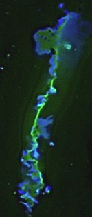 gap junction plaqe with GFP labels